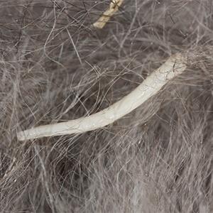 Tapeworm - Care Advice